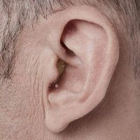 A Completely In Canal Hearing Aid